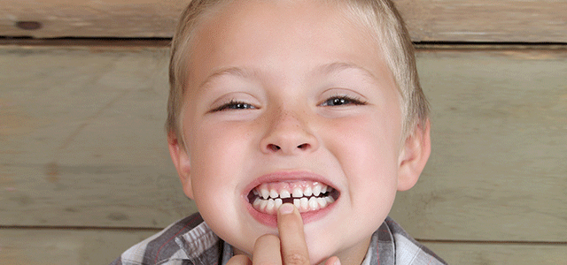 Child is Missing a Tooth Options