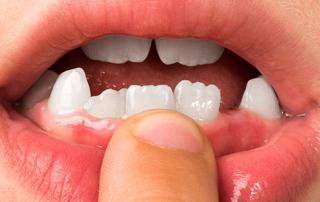Teen Shape of Their Teeth